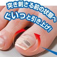 送料無料【巻き爪シール 1ヶ月ケア】巻き爪、巻...
