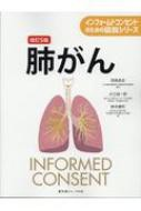 【単行本】 西條長宏 / 肺がん インフォームドコンセントのための図説シリーズ 送料無料