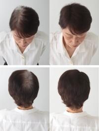 【シャルムヘアーファンデーション 80g】スプレーするだけで薄毛を目立たなくし、立体感のある微粉末が髪をボリュームアップ!