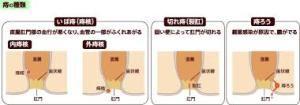 7777 痔 ジーフォーL注入軟膏 10入 【指定第2類医薬品】