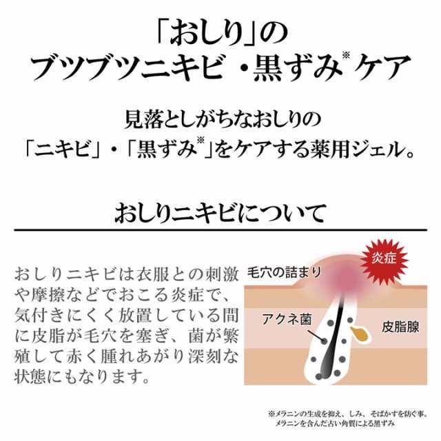 ニキビ 画像 おしり お尻ニキビのイメージの写真・画像素材[1432157]