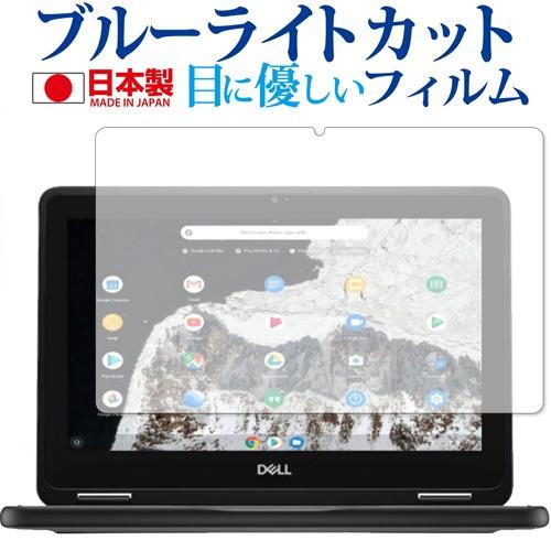 DELL Chromebook 11 3100 2-in-1 専用 ブルーライ...