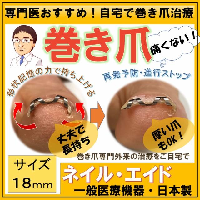 巻き爪 治療 自分で 矯正 【 ネイル・エイド 1...