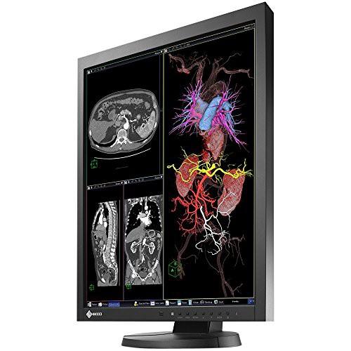 品質のいい 21.3IN MX215-BK by DVI RADIFORCE 1600X1200 1500:1 USB LCD (品) MEDICAL 2MP-その他パソコン・PC周辺機器