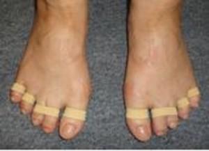 足ゆびバランスパッド(シングルタイプ)♪外反母趾・浮き指・巻爪・ハンマートゥ・冷え性・むくみ♪特許取得。