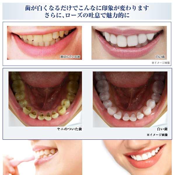の 歯磨き粉 タバコ ヤニ 喫煙者必見!歯のヤニ取りに必要な3つのポイント