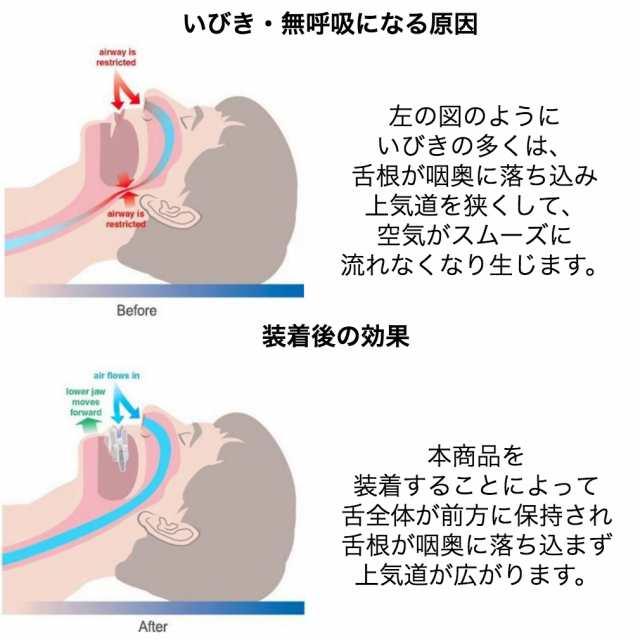 口 呼吸 改善 睡眠