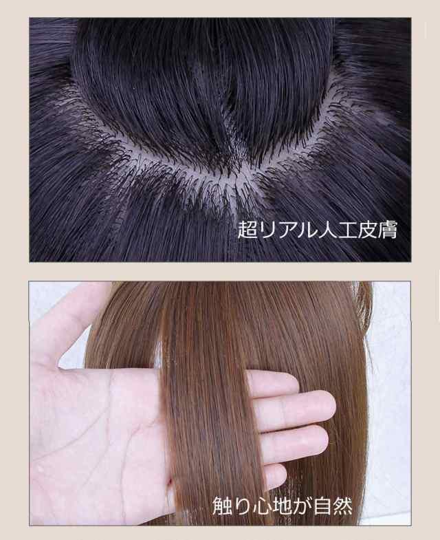 女性 前髪 薄毛