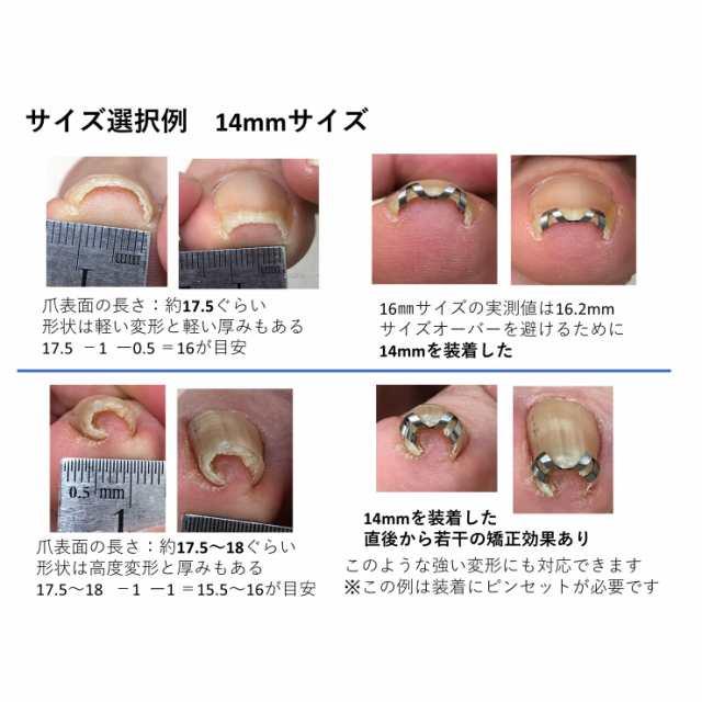 治療 巻き 爪 病院で巻き爪治療するなら何科?治療の方法や保険適用について解説します